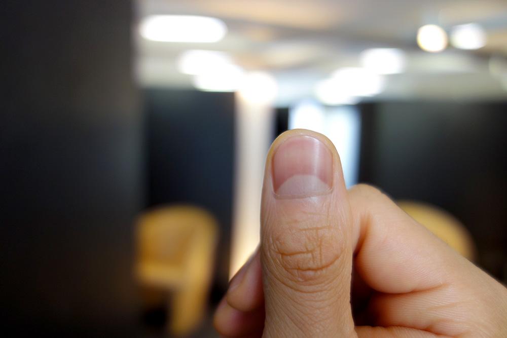 ない 爪 半月 爪を見て健康状態を知ろう!ケア方法も紹介